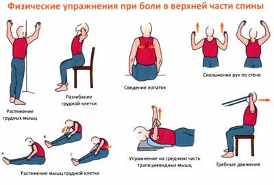Физические упражнения при болях в верхней части спины